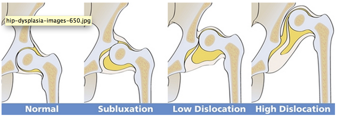 Dysplasie Développementale de la hanche